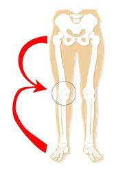 膝痛がどこからやって来るのか?その原因は?